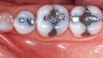 Naples Dental Implants
